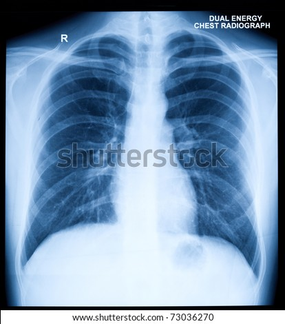 X-Ray Image Of Human Healthy Chest