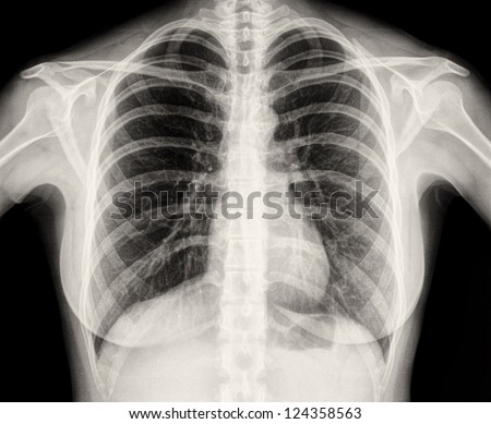 X-Ray Image Of Human Healthy Chest MRI