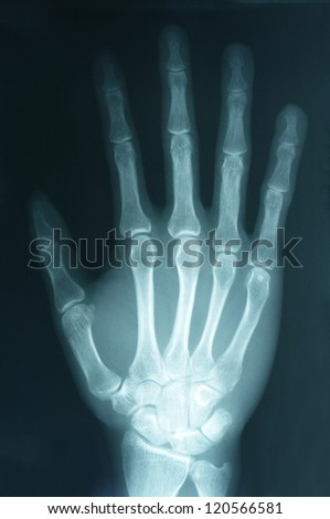 X-ray image of Human right hand