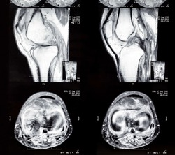 X-ray image of knee joint legs. Computed tomography