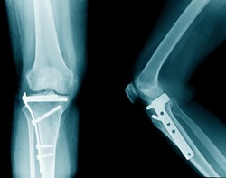 x-ray image of knee, tibia fracture with post operation internal fixation
