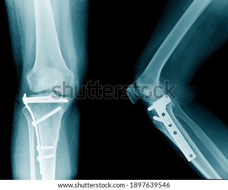 x-ray image of knee, tibia fracture with post operation internal fixation  Photo stock ©