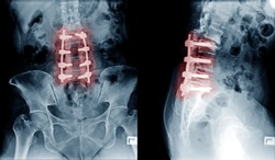 X-ray image of lumbar spine postoperative treatment for degenerative lumbar disc disease by decompression and fix by iron rod and screws