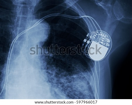 x-ray image of permanent pacemaker implant in chest body , process in blue tone #597966017