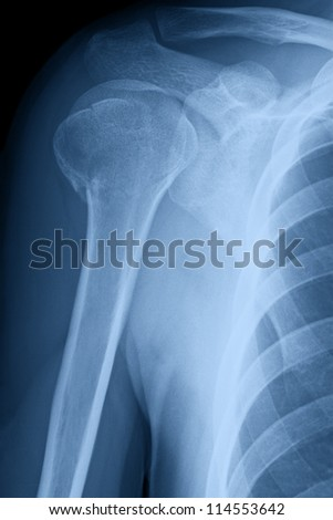 X-ray image of right male shoulder after month of treatment of broken neck of humerus.