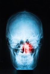 X-ray image of skull with red pain point in sinuses, sinusitis concept, vertical, closeup