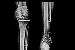 X- Ray image of the distal third of femur and proximal of the tibia with screws  after surgery due to fracture. Medical themes.