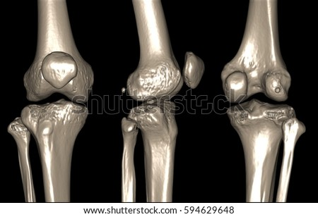 X-ray image of the knee computed tomography (CT) , 3D image  #594629648