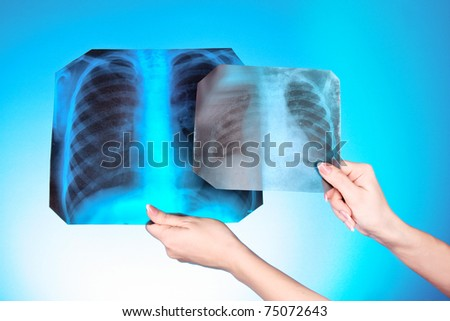 X-Ray Image of two chest on blue background in hand. One man in different age