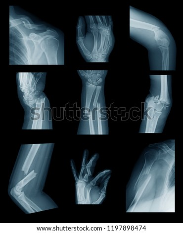 X-ray image of upper extremity fractures #1197898474