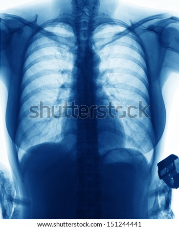 X-Ray Image Of Young Woman Chest for a medical diagnosis
