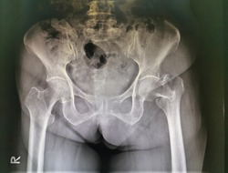 X-ray image, X-ray Both hip AP view, show fracture  neck and trochanter of left  femur.