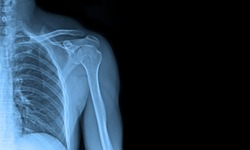 x-ray images shoulder joint to see injuries of tendons and bones for a medical diagnosis.