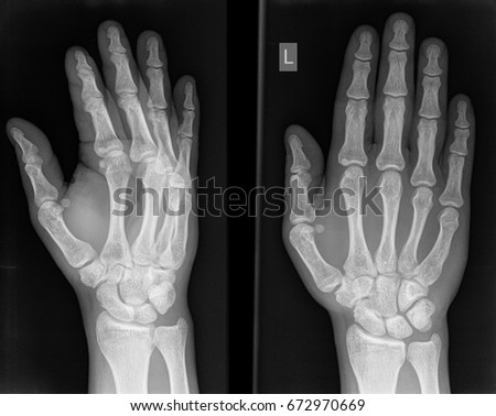 X-ray inspection of the right hand of the man. #672970669