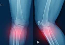 X-ray knee Fracture proximal metaphysis of tibia.Depressed fracture of lateral tibial plateau.severe swelling of soft tissue on red point .Medical healthcare concept.