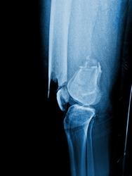 X-ray Left femur(left thigh) show complete fracture shaft of femur