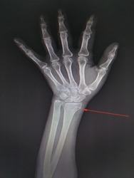 X-ray Lt. Wrist AP finding Non displaced fracture at distal epi-metaphyses of left radius.Avulsion fracture at tip of left ulnar styloid process.No definite joint subluxation.Medical image concept.