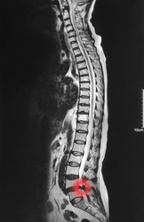 x-ray mri lumbosacral spine a case of low back pain to preoperatively evaluate shows flaws  spinal nerve