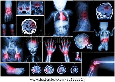 X-ray multiple part of child \'s body & multiple disease ( stroke , brain tumor , rheumatoid arthritis , sinusitis , gouty arthritis , etc)( skull chest lung heart spine arm hand pelvis leg knee foot )