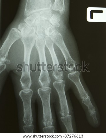 X-ray of a hand - stock photo