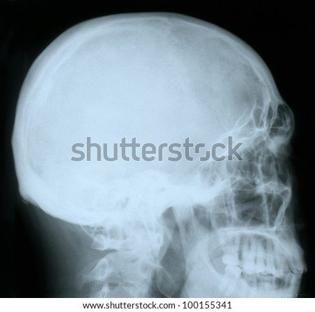 X-ray of a human skull, from profile