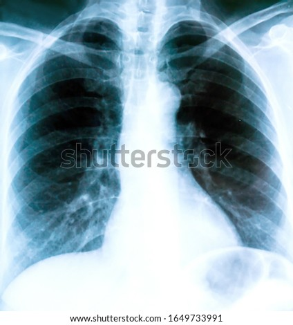 X-ray of a patient's lungs with pronounced traces of the inflammatory process