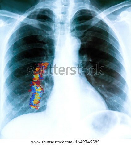 X-ray of a patient's lungs with pronounced traces of the inflammatory process .