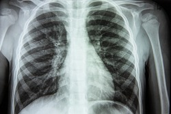 X-ray of a person s lungs with a disease. Coronavirus or cancer infected lungs. Virus screening