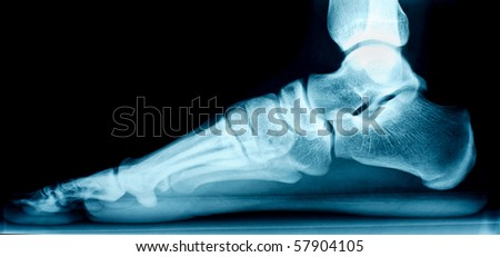 X-ray of a right foot from the side