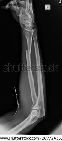 X-ray of both human arms.