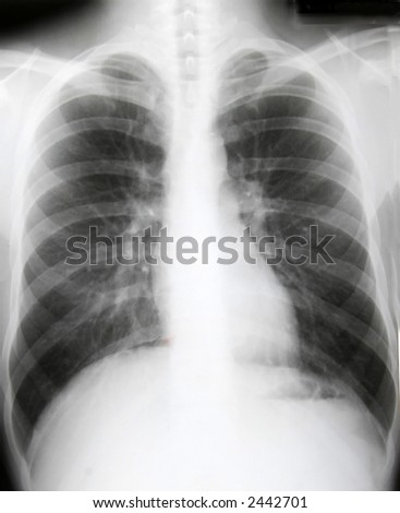 X-ray of chest of healthy patient
