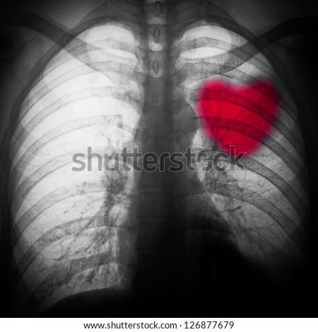 x-ray of chest of human black and white with a red heart