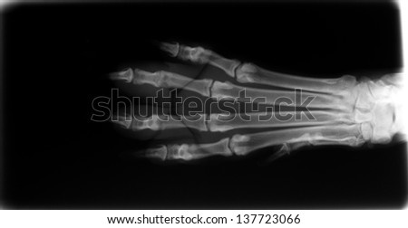 X-ray of dog foot