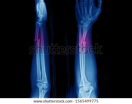 Photo of  X-ray of forearm and wrist showing closed fracture at distal part of diaphysis of radius with distal radioulnar joint or DRUJ dislocation. The fracture is also called Galeazzi fracture.