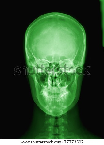 X-ray of green Alien's skull  / Many others X-ray images in my portfolio.