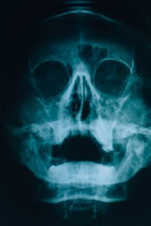 X-ray of head. X-ray picture of a human skull. Sinusitis and maxillary sinuses.