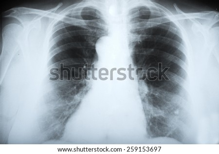 x-ray of human body parts