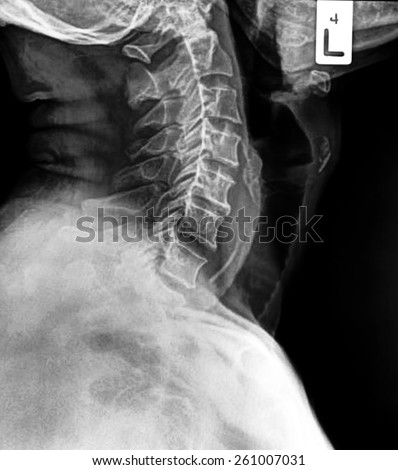 X-ray of human cervical spine