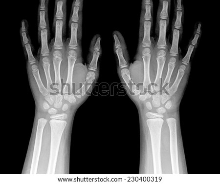 X-ray of human hand and wrist. #230400319