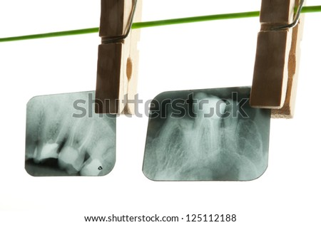 X-ray of human teeth on light background