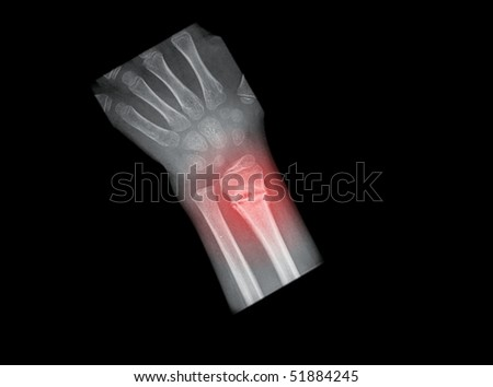 x-ray of painful arm fracture, isolated on black background