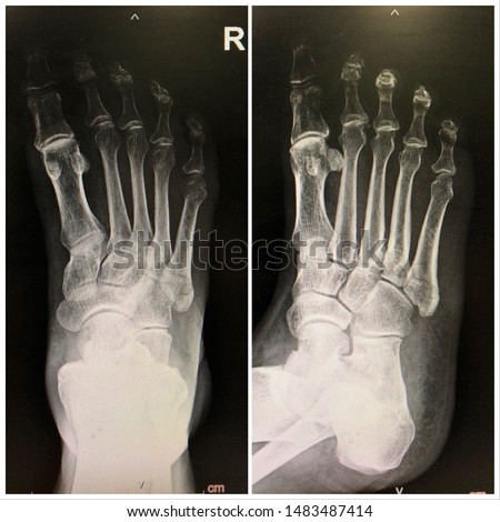 X-ray of right foot showed fracture of 5th metatarsal bone(Jones fracture)