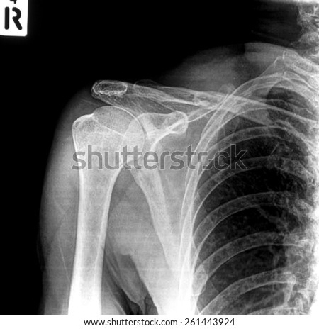 X-ray of shoulder joint / Many others X-ray images in my portfolio.