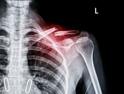 X-ray of shoulder joint show fracture clavicle