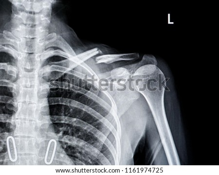 X-ray of shoulder joint show fracture clavicle                                 #1161974725