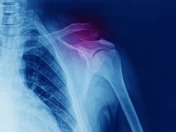 x-ray of shoulder showing fracture of distal clavicle or collarbone. the fracture is superior displaced. the patient need surgery in operating room.