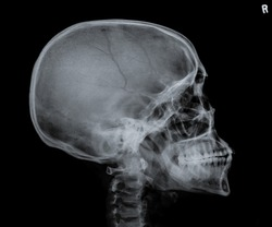 X ray of skull side view.