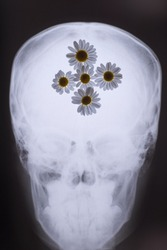 X-ray of the bones of the skull, with white daisies filled in the picture. Medical concept. Flowers and x-ray of the skull. Flowers in the head, with a background on ideas