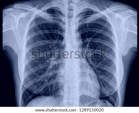 X-ray of the chest #1289150020