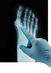 X-ray of the feet, valgus deformity of the toe or a bone on a finger 3rd degree orthopedic disease.
